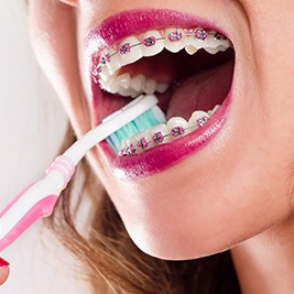 Closeup of teeth brushing with braces