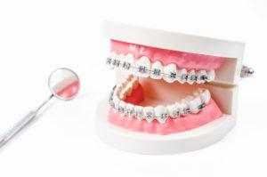 braces on dental model