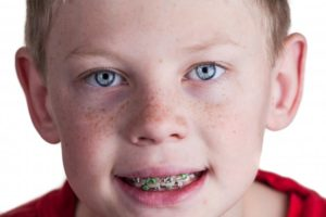 Boy smiling with braces in red shirt