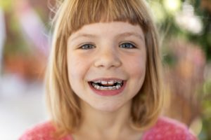 little girl with Phase 1 ortho